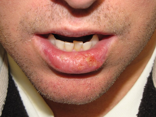 Squamous Cell Carcinoma Lower Lip - Treatment