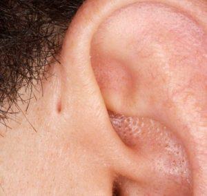 periauricular_lesion1-300x284