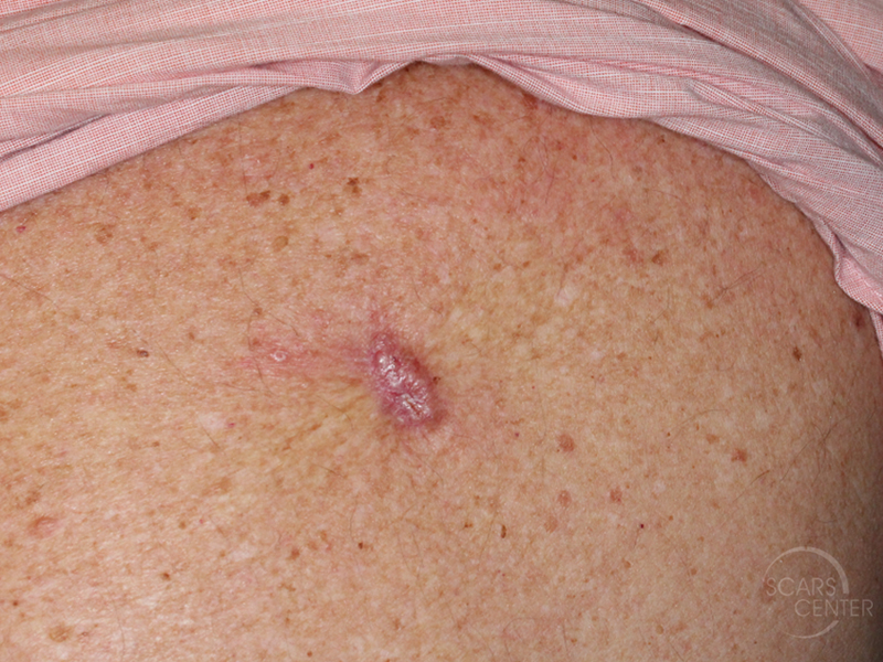 Skin-Cancer-Diagnosis-Back-Keloid-with-BCC-SCARS-Foundation