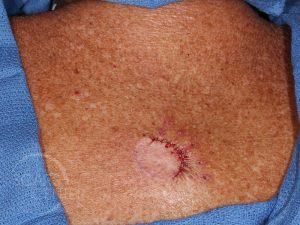Skin-Cancer-Diagnosis-Chasing-Margins-of-Melanoma-in-Situ-of-Back-SCARS-Foundation2