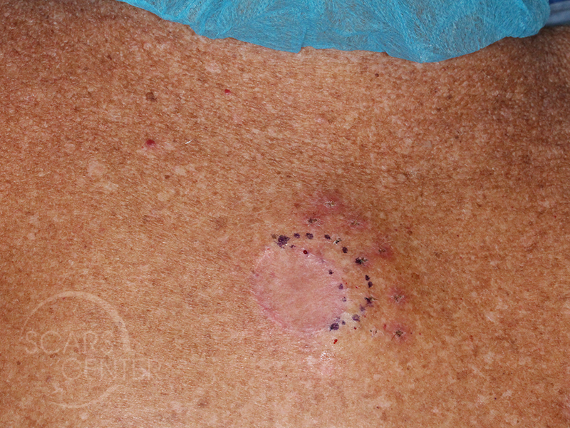 Skin-Cancer-Diagnosis-Chasing-Margins-of-Melanoma-in-Situ-of-Back-SCARS-Foundation4