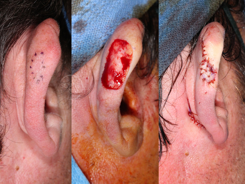 Right Ear Melanoma In Situ with Depth Uncertainty - The role