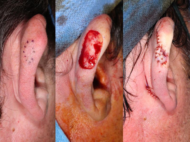 Right Ear Melanoma in Situ - Treatment