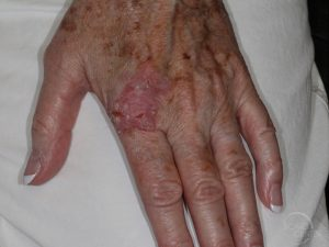 Skin-Cancer-Diagnosis-hand-squamous-cell-carcinoma-in-situ-SCARS-Foundation