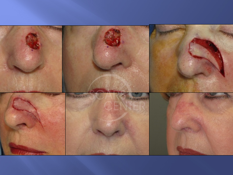 1SCARS-Center-Reconstructive Cases-Extended-Lateral-Nasal-Island-Flap-skin-cancer-nose 15