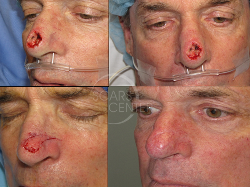 1SCARS-Center-Reconstructive Cases-Extended-Lateral-Nasal-Island-Flap-skin-cancer-nose (2)