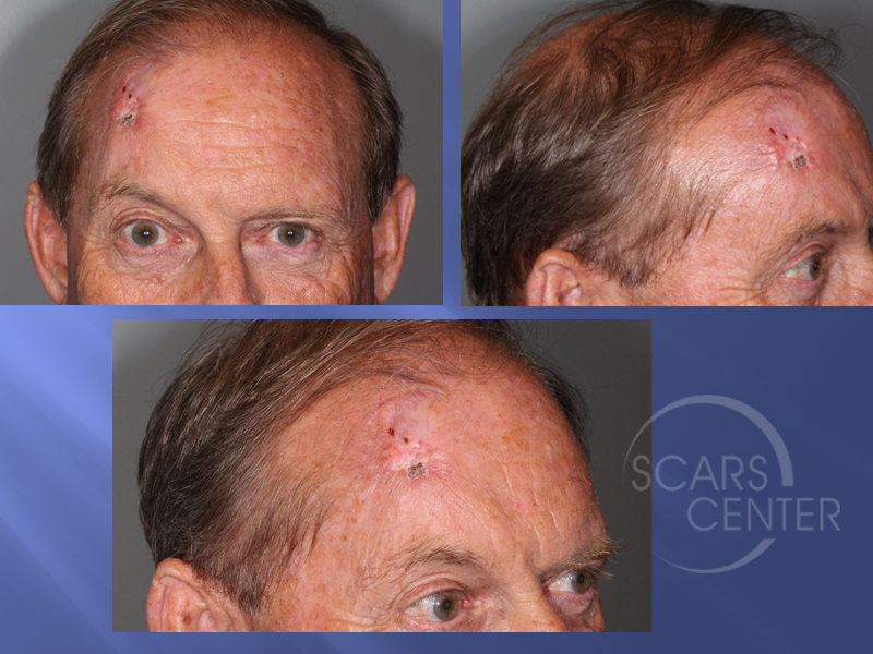 1SCARS-Center-Recurrent-extensive-basal-cell-carcinoma-of-forehead-skin-cancer-forehead (3)