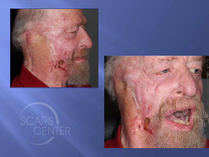 2SCARS-Center-Field-Cancerization-with-basal-cell-carcinoma-skin-cancer-forehead (3)