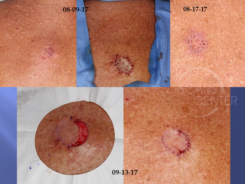 Additional-Margin-Excision-After-Skin-Grafting-SCARS-Center-Reconstructive-Case-1-Skin-Cancer-And-Reconstructive-Surgery-Center-Orange-County4