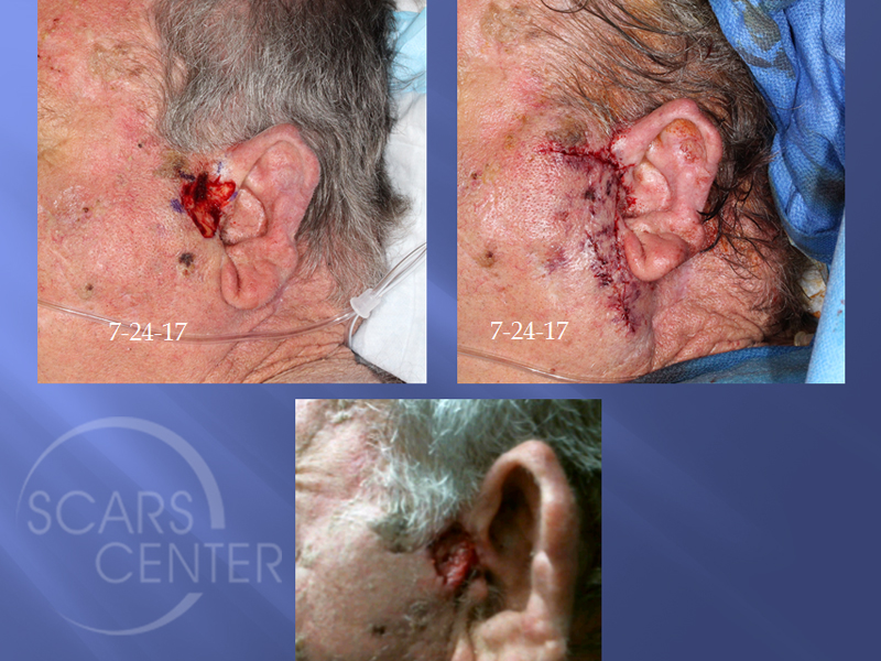 Cheek-Flap-Ischemic-Complication-Skin-Cancer-And-Reconstructive-Surgery-Foundation-Skin-Cancer-Conference-August-2017