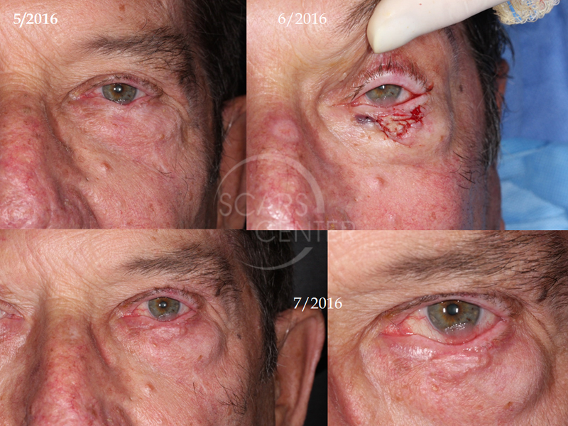 Conjunctival-Squamous-Cell-Carcinoma-Skin-Cancer-And-Reconstructive-Surgery-Foundation1