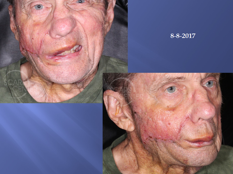 Deeply-Invasive-Squamous-Cell-Carcinoma-of-Cheek-Skin-Cancer-And-Reconstructive-Surgery-Foundation-Skin-Cancer-Conference-August-2017.2