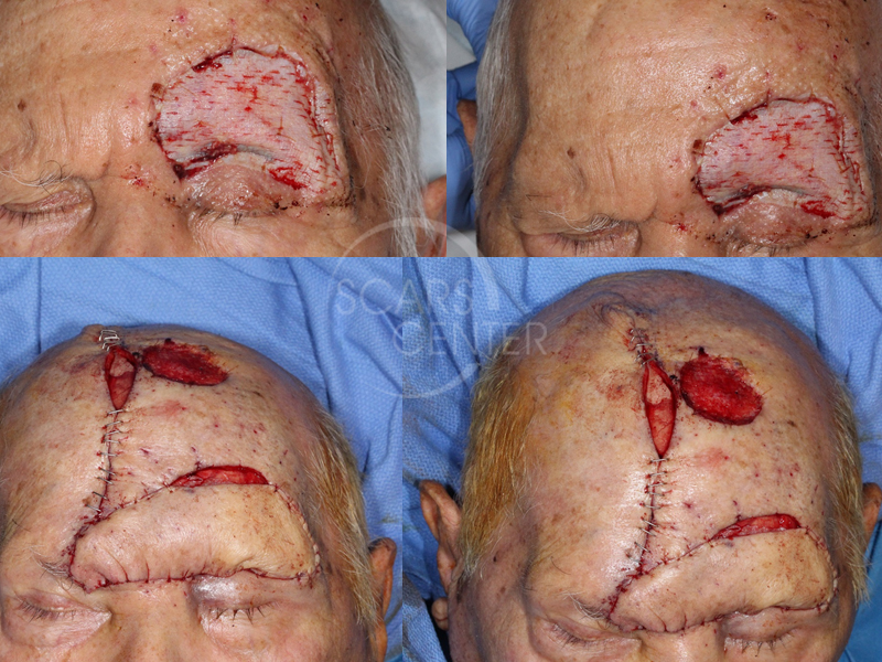 EYEBROW-AND-FOREHEAD-SQUAMOUS-CELL-CARCINOMA-Skin-Cancer-And-Reconstructive-Surgery-Foundation2