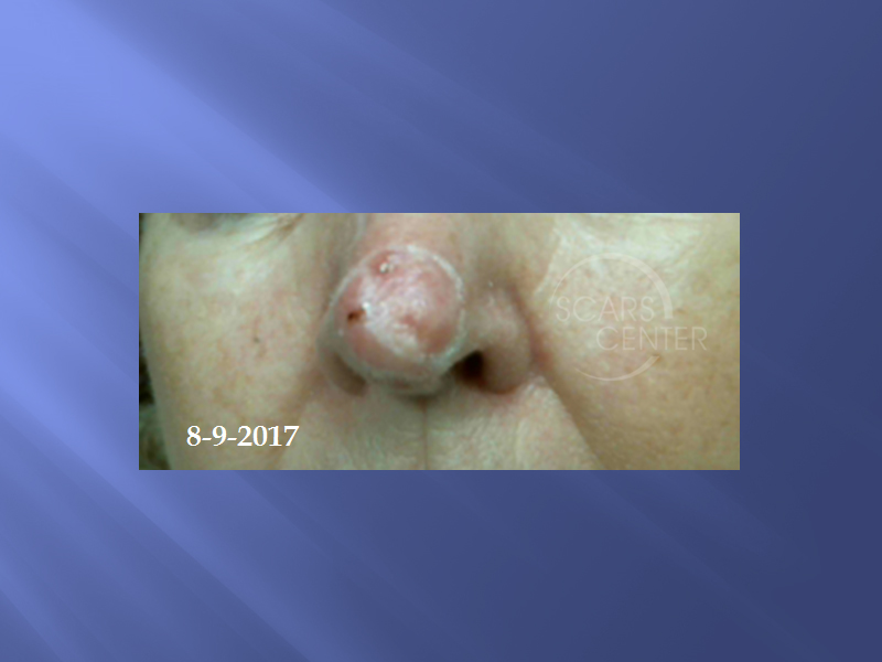 Extensive-Nasal-Tip-Basal-Cell-Carcinoma-Skin-Cancer-And-Reconstructive-Surgery-Foundation-Skin-Cancer-Conference-August-2017