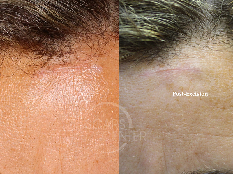 Foreign Body Granuloma Of Forehead Skin Cancer And Reconstructive Surgery Center