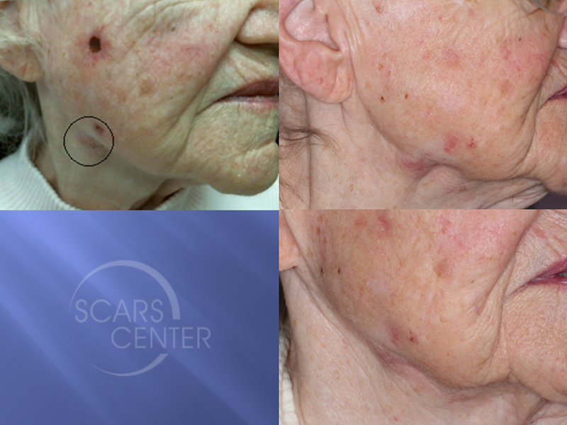 Invasive-Bowens-Carcinoma-of-Cheek-Skin-Cancer-And-Reconstructive-Surgery-Foundation1