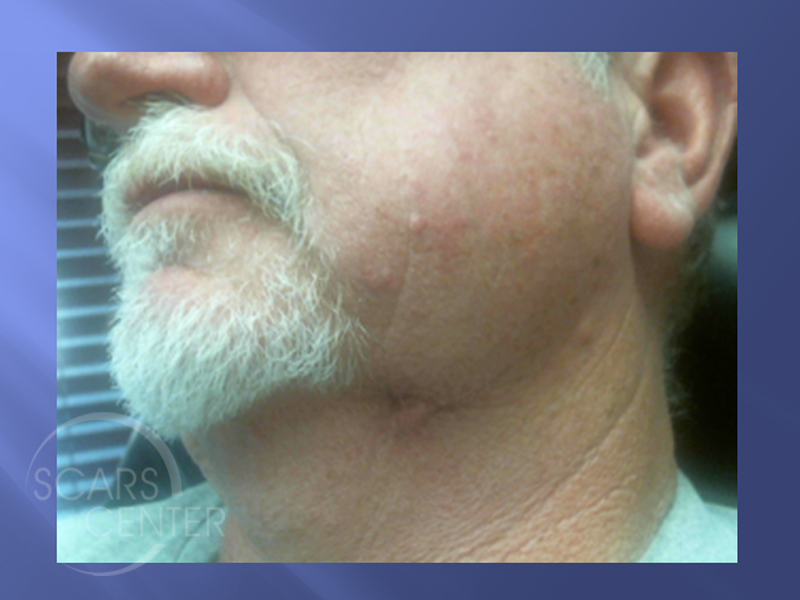 Left-Neck-Metatypical-Basal-Cell-Carcinoma-Skin-Cancer-And-Reconstructive-Surgery-Foundation1