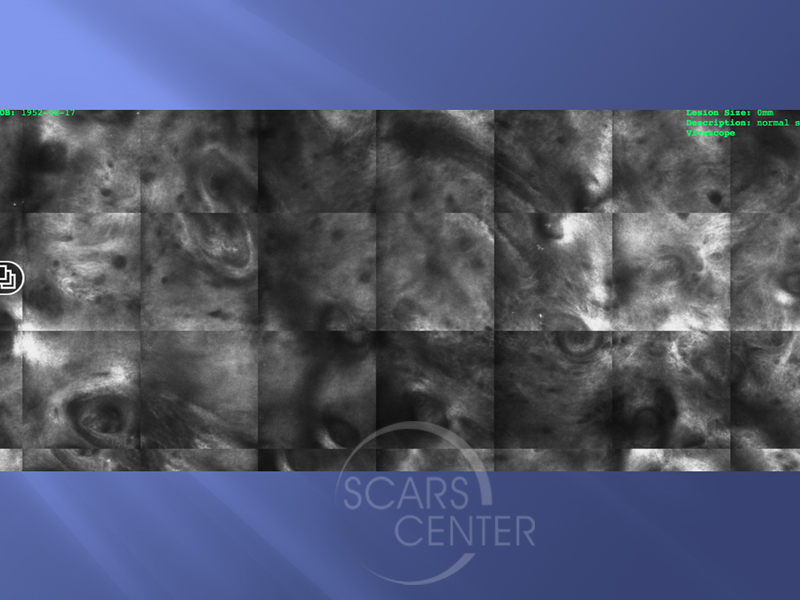 Mapping-BCC-with-Confocal-Microscopy-Skin-Cancer-And-Reconstructive-Surgery-Foundation10