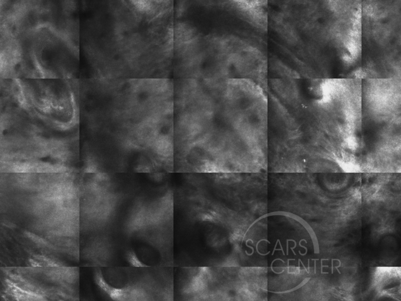 Mapping-BCC-with-Confocal-Microscopy-Skin-Cancer-And-Reconstructive-Surgery-Foundation11