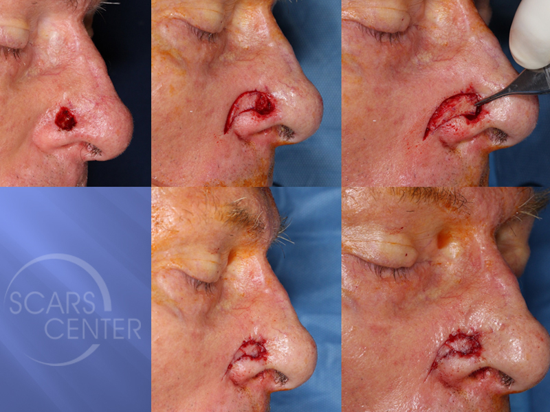 Reconstructive-Case-Alar-Island-Combination-Flap-Skin-Cancer-And-Reconstructive-Surgery-Foundation2