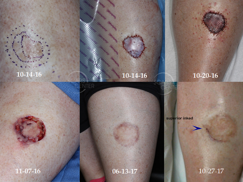Recurrent-Melanoma-In-Situ-of-Leg-Imaging-Guided-Excision-SCARS-Foundation.1