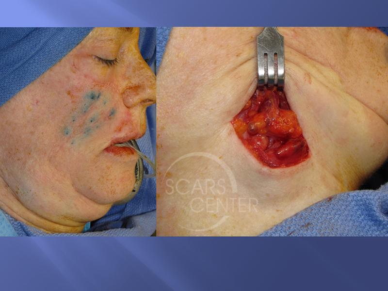 Recurrent-Melanoma-SCARS-Center-Case-2-Skin-Cancer-And-Reconstructive-Surgery-Center-Orange-County3