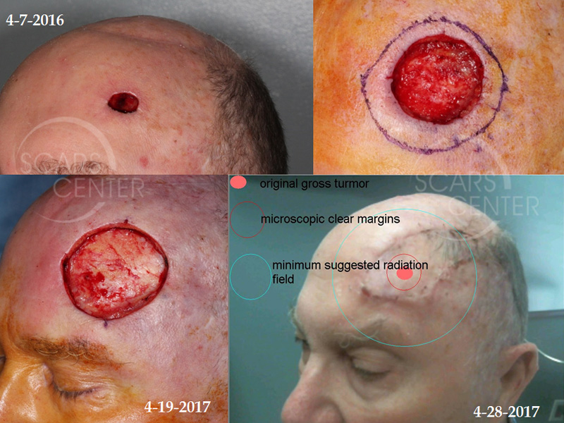 SCARS-Center-Aggressive-Forehead-SCC-Skin-Cancer-Forehead