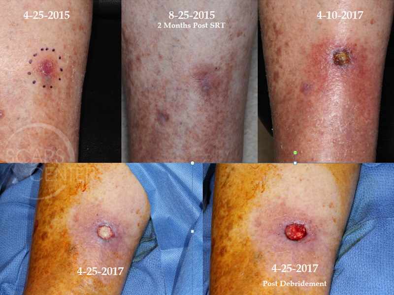 Lower Leg Radiation Ulcer Skin Cancer And Reconstructive Surgery Center