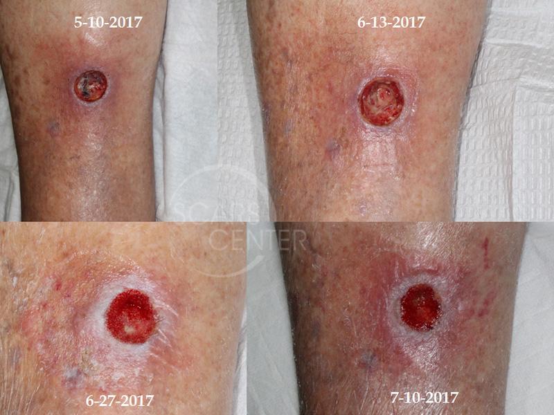 SCARS-Center-Lower-Leg-Radiation-Ulcer-Skin-Cancer-Leg1