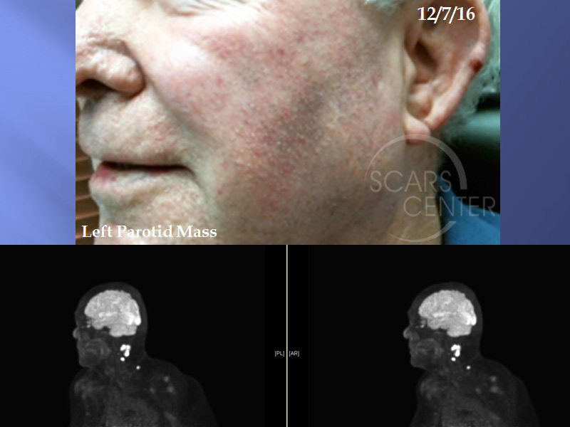 SCARS-Center-Metastatic-Squamous-Cell-Carcinoma-Skin-cancer-jaw