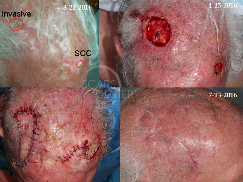 SCARS-Center-Metastatic-Squamous-Cell-Carcinoma-of-Scalp-skin-cancer-scalp-2