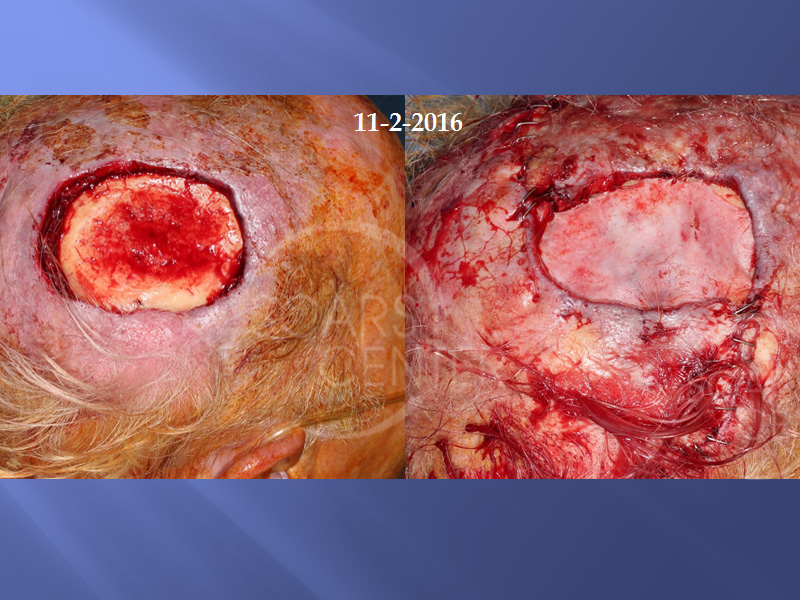 SCARS-Center-Metastatic-Squamous-Cell-Carcinoma-of-Scalp-skin-cancer-scalp-4