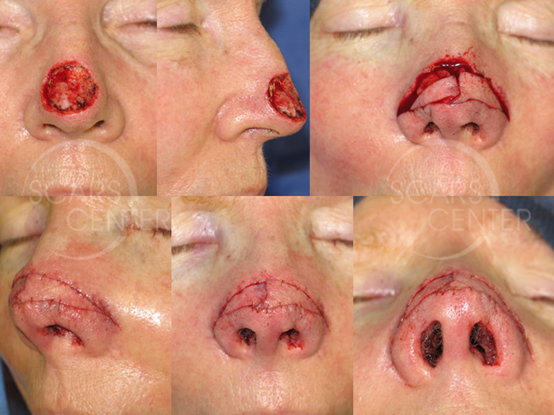 SCARS-Center-Reconstructive-Cases-Bilateral-Nasal-Island-Flaps-for-Large-Nasal-Defects-skin-cancer-nose-2.1