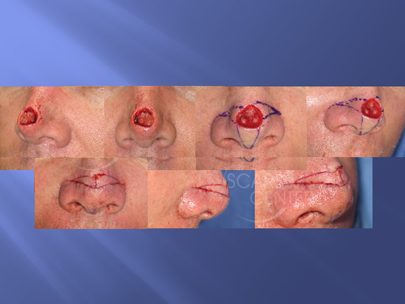 SCARS-Center-Reconstructive-Cases-Bilateral-Nasal-Island-Flaps-for-Large-Nasal-Defects-skin-cancer-nose