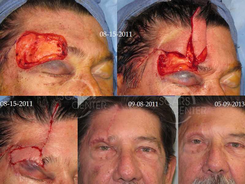 SCARS-Center-Reconstructive-Cases-Large-Forehead-Defects-Skin-cancer-forehead-3
