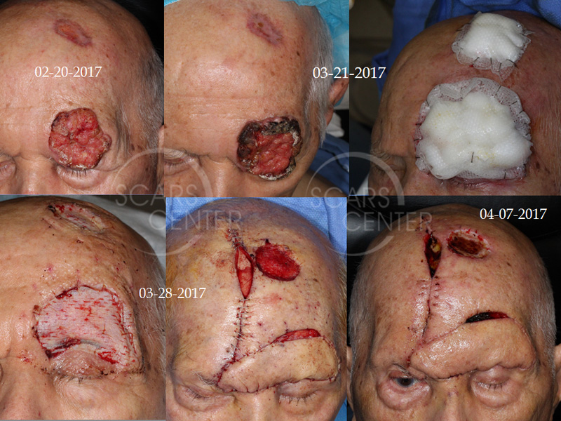 SCARS-Center-Reconstructive-Cases-Large-Forehead-Defects-Skin-cancer-forehead-4