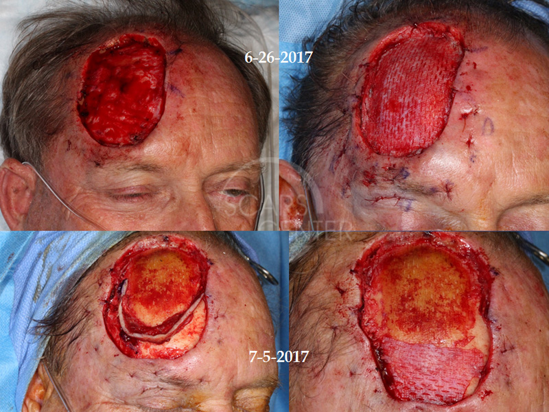 SCARS-Center-Recurrent-Extensive-Basal-Cell-Carcinoma-of-Forehead-skin-cancer-forehead-2