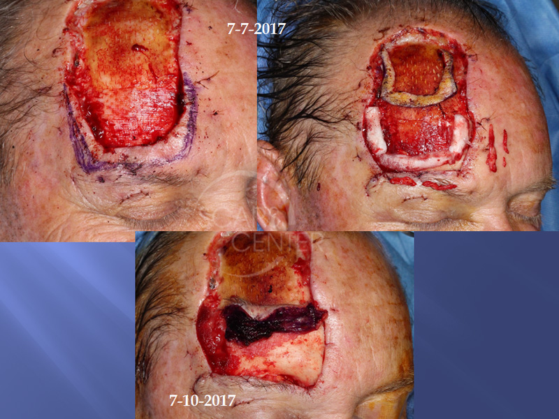 Recurrent Extensive Basal Cell Carcinoma of Forehead