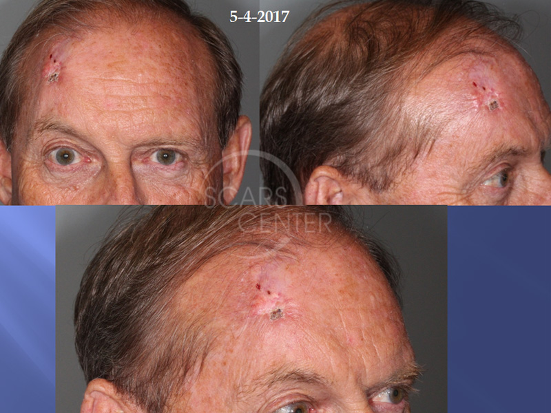 SCARS-Center-Recurrent-Extensive-Basal-Cell-Carcinoma-of-Forehead-skin-cancer-forehead