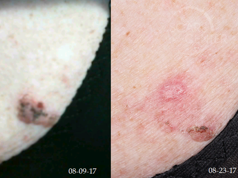 SCC-with-SK-clinical-Presentation-SCARS-Center-Case-5-Skin-Cancer-And-Reconstructive-Surgery-Center-Orange-County