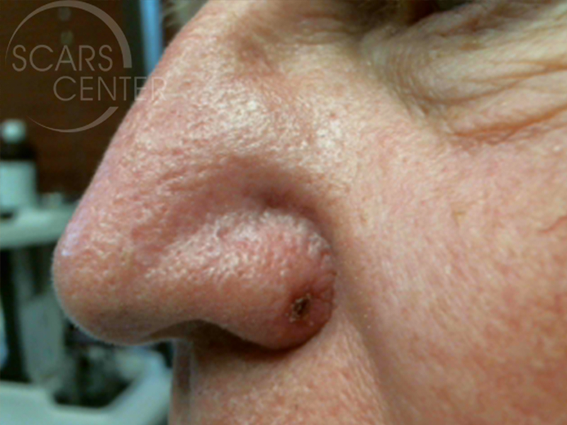 Sclerosing-Adnexal-Carcinoma-of-Nose-Skin-Cancer-And-Reconstructive-Surgery-Foundation-1