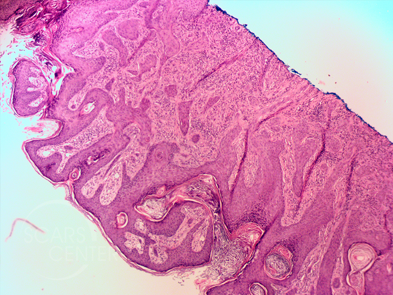 Sclerosing-Adnexal-Carcinoma-of-Nose-Skin-Cancer-And-Reconstructive-Surgery-Foundation-Path1