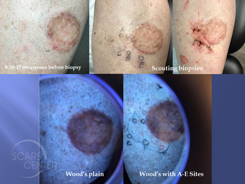 Skin-Cancer-And-Reconstructive-Surgery-Center-Foundation-Mapping-of-Recurrent-Melanoma-In-Situ-of-Leg