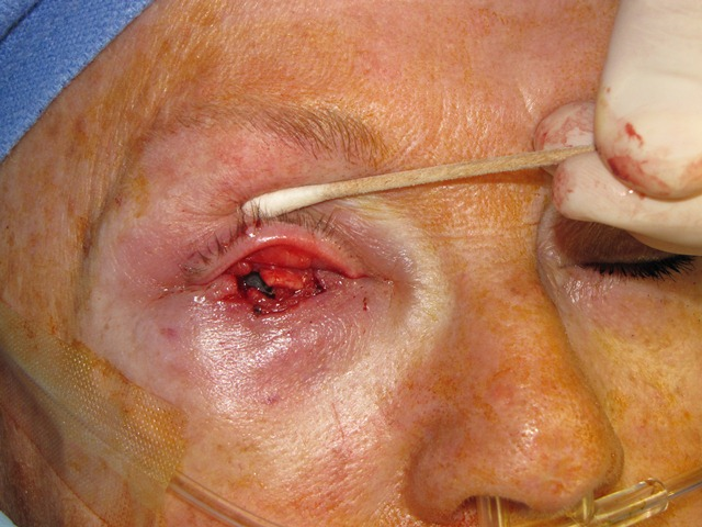 Eyelid Reconstruction Treatment at Scars Center