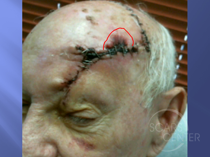 Undifferentiated-Pleomorphic-Sarcoma-of-Scalp-Skin-Cancer-And-Reconstructive-Surgery-Foundation3