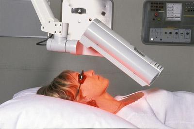 aktilite_PDT_patient-treatment