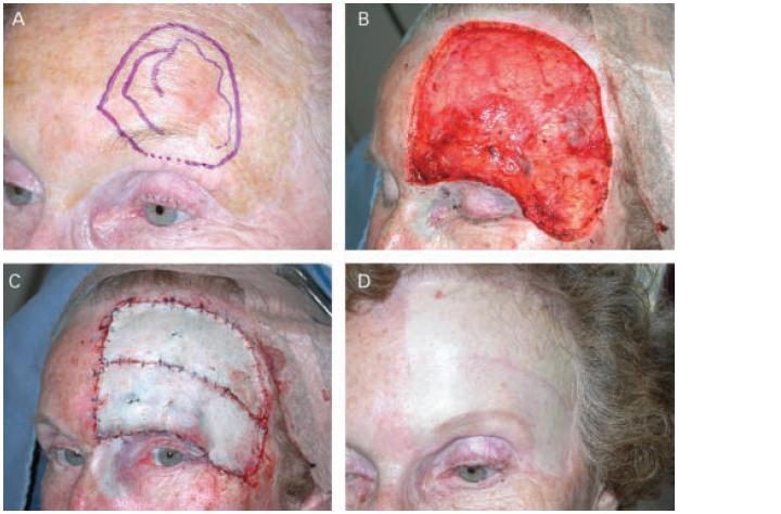 Radical Excision of Melanoma in Situ