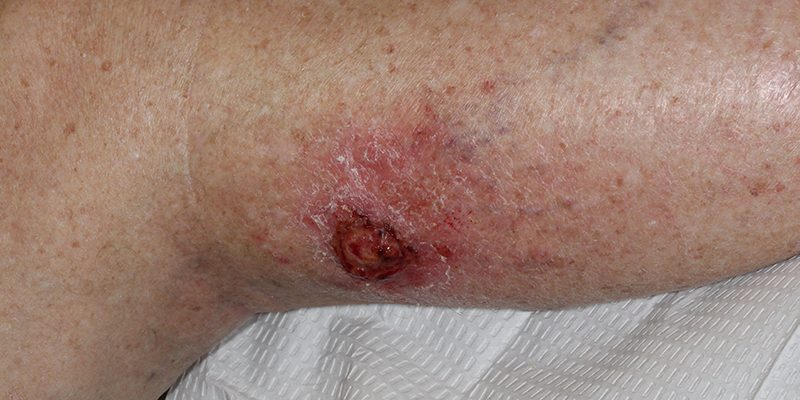 Sarcoma-of-the-Skin-AFX-Skin-Cancer-and-Reconstructive-Surgery-Center-Orange-County-panorama
