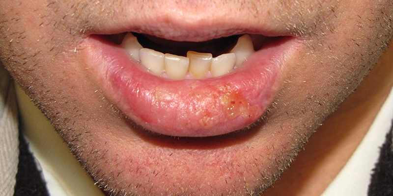 High-Risk-Squamous-Cell-Carcinoma-Lip-Skin-Cancer-and-Reconstructive-Surgery-Center-Orange-County