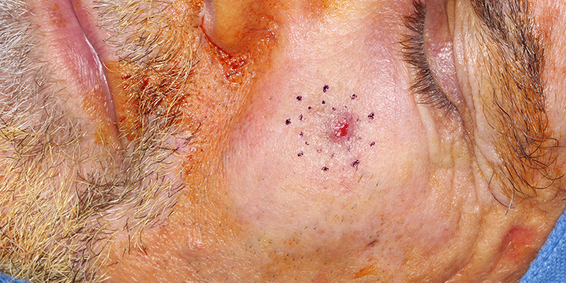 Invasive-Melanoma-Cheek-Skin-Cancer-and-Reconstructive-Surgery-Center-Orange-County